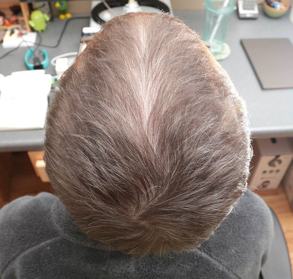 Irestore Laser Hair Growth System Review The Gadgeteer